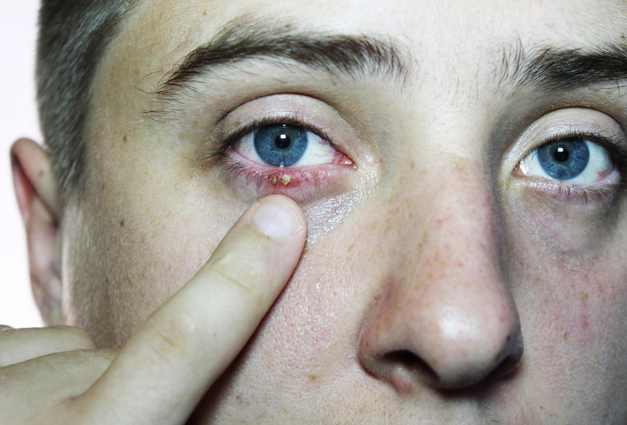 Remedios Caseros Cómo Combatir Los Orzuelos O Perrillas En La Párpados De Los Ojos